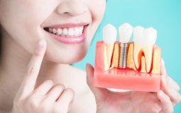 Răng Implant có đủ chân răng, thân răng nên giúp ngăn chặn hiện tượng tiêu xương