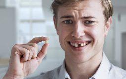 Mất răng cửa lâu năm hoặc không điều trị kịp thời sẽ khiến cho mô răng bị hỏng dần