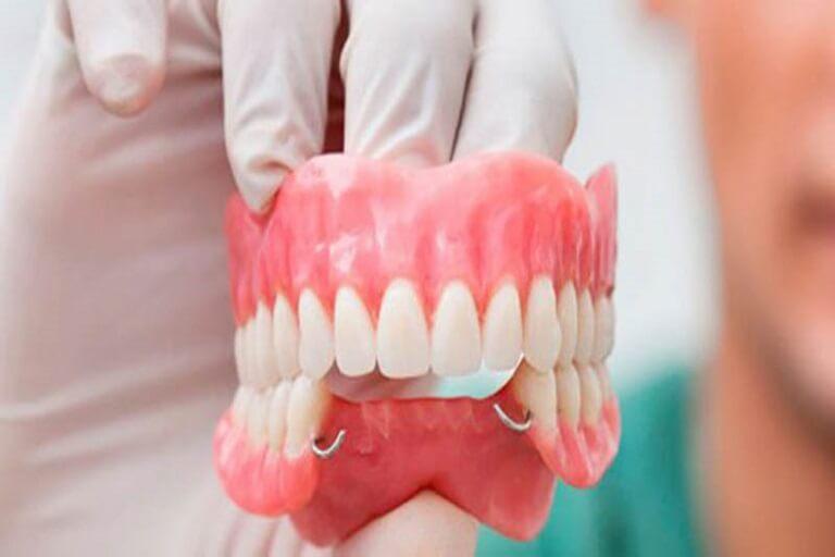 Trồng răng giả tháo lắp là phương pháp giúp phục hình răng bị mất mà nhiều người lựa chọn