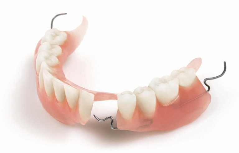 Cấu tạo của hàm giả tháo lắp được sử dụng các chất liệu như nhựa, sứ, titan…