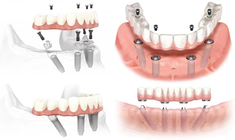 Độ bền của răng giả tháo lắp trên trụ Implant thường rất cao
