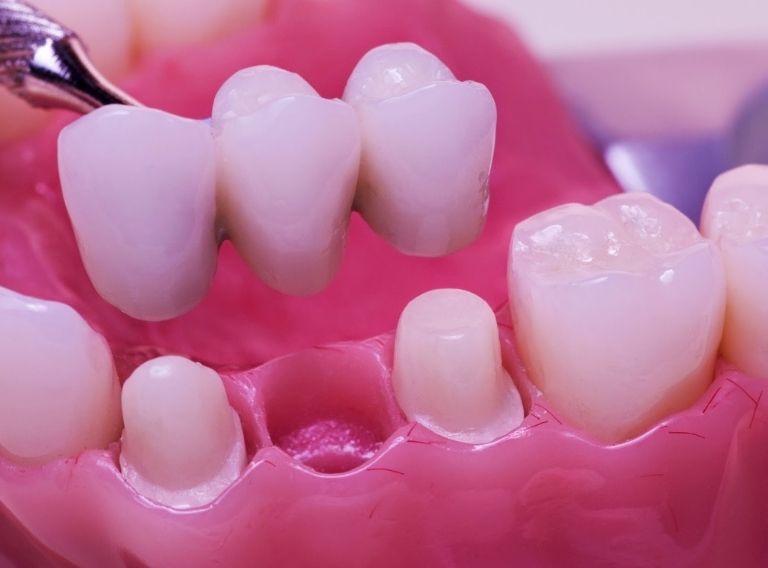 Phương pháp cầu răng sứ thường được chỉ định trong trường hợp mất một hoặc nhiều răng