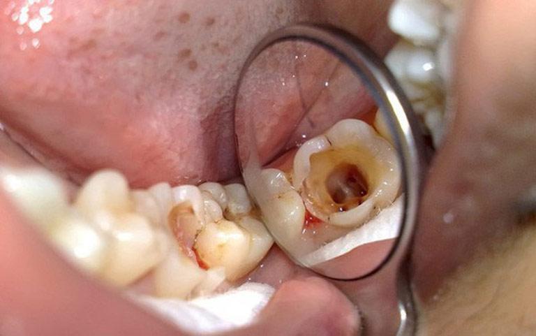 Trồng răng hàm phù hợp với những người bị sâu răng mức độ nặng