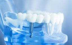 Cấy ghép Implant là phương pháp trồng răng hàm được coi là hiện đại nhất hiện nay