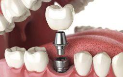 Cấy ghép Implant được coi là giải pháp tối ưu nhất hiện nay