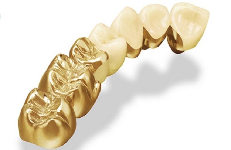 Răng vàng sử dụng chất liệu cao cấp, có độ cứng chắc tốt