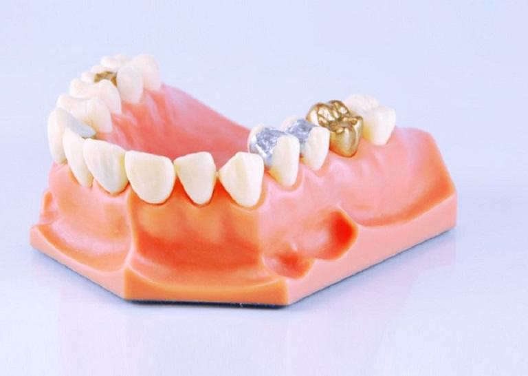 Giá trồng răng vàng dao động trong vòng từ 10.000.000 đồng đến 15.000.000 đồng/răng